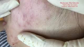 The second acne treatment of a female customer - Điều trị mụn tại Hà Quyên Spa phần 57