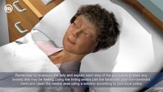 Female Catheterisation video-Optimum Medical