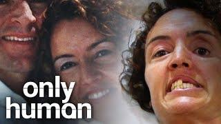 Woman Lost Half of Her Face | Only Human