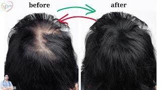 HAIR LOSS TREATMENT IN WOMEN: STAGES OF FEMALE PATTERN BALDNESS