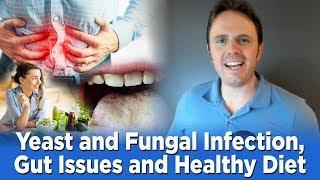 Yeast and Fungal Infection, Gut Issues and Healthy Diet | Dr. J Q & A