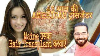 FEMALE TRANSGENDER HAIR TRANSPLANT || Male to Female Transgender Surgery
