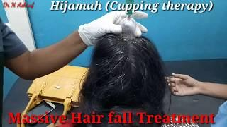 How can I stop my hair from falling out female,