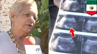 71-year-old preggo woman set to become world's oldest mother - TomoNews