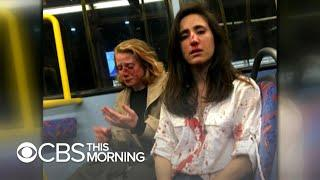 Victim of homophobic bus attack speaks out